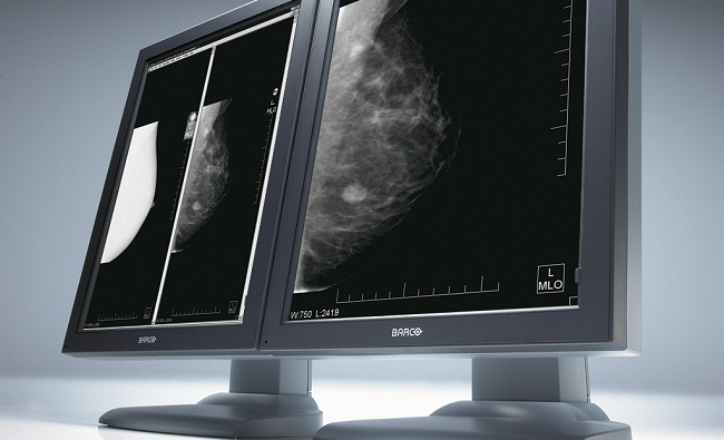 Digital Mammography In Sonipat And Delhi