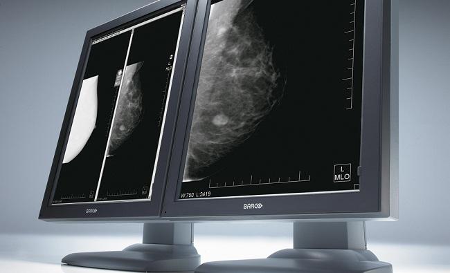 Digital Mammography In Sonipat And Delhi